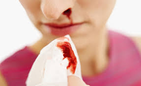Epistaxis Market 2020 Global Industry Key Players, Size, Trends, Opportunities, Growth Analysis and Forecast to 2026